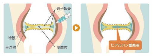 「ヒアルロン酸 膝」の画像検索結果