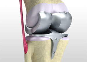 膝の人工関節の説明