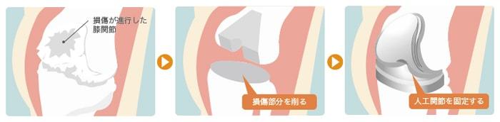 人工膝関節置換術の手術方法