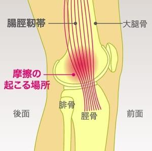 腸脛靭帯炎とは