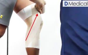 内側側副靭帯損傷 テーピング