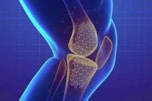 膝を切らない膝痛治療