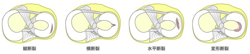 半月板損傷の種類
