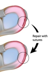半月板縫合術の適応