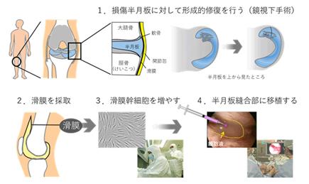半月板損傷を治療する滑膜由来幹細胞の移植術