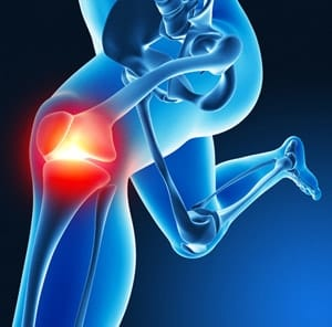 けがは変形性膝関節症の原因のひとつ