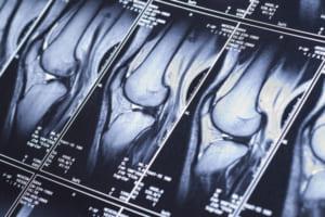 膝の診察のイメージ