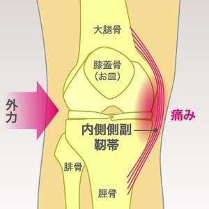 内側側副靭帯損傷とは