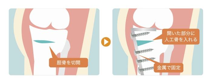 変形性膝関節症の手術のオープンウェッジ法