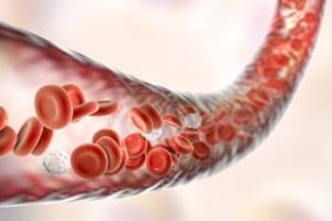 早歩きで血流増加