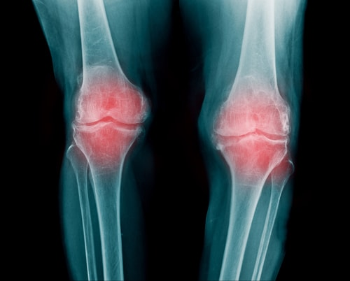 変形性膝関節症の原因