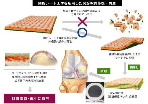 軟骨細胞シートと再生医療