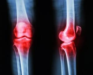 変形性膝関節症の手術