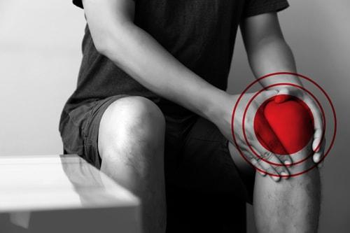 人工膝関節置換術の術後症状