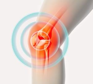 変形性膝関節症への運動治療の効果
