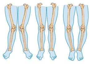 膝の痛みとO脚