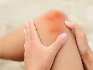 膝が腫れる違和感