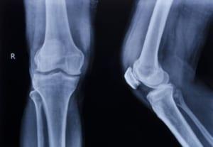 膝の捻挫の検査