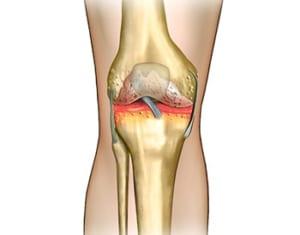 膝の捻挫と関節痛