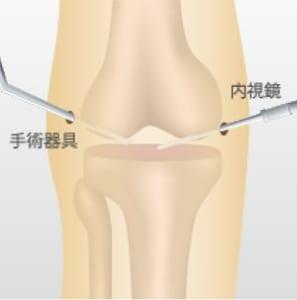 膝の捻挫の手術療法