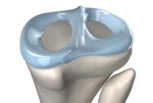 膝関節の半月板