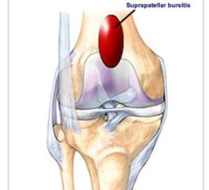 膝蓋上滑液包炎