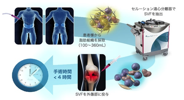 脂肪幹細胞治療