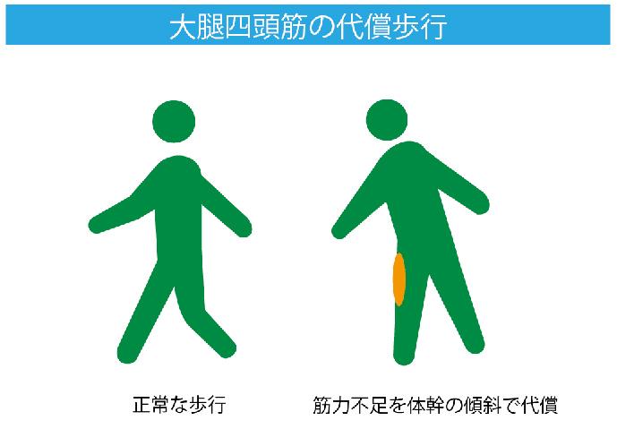 大腿四頭筋の代償歩行