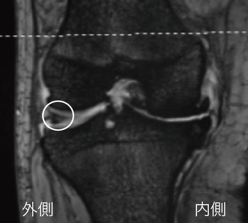 MRI検査で分かる半月板損傷