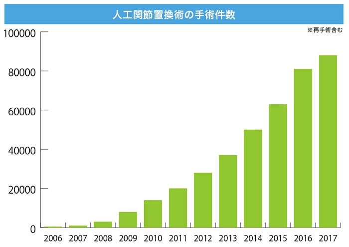 日本の人工膝関節置換術の件数