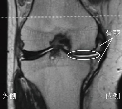 MRI検査で診断された変形性膝関節症の末期