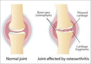 膝の関節炎