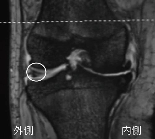 膝のMRI画像