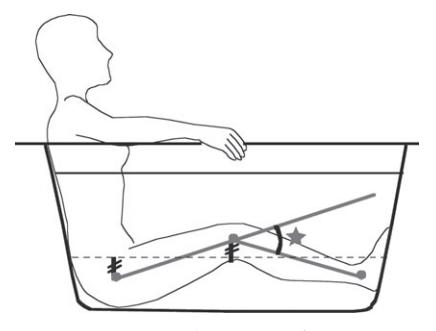 変形性膝関節症に効果的なCKC運動