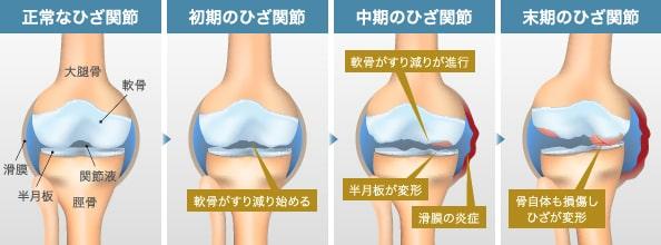 変形性膝関節症の進行に伴う関節内の状態
