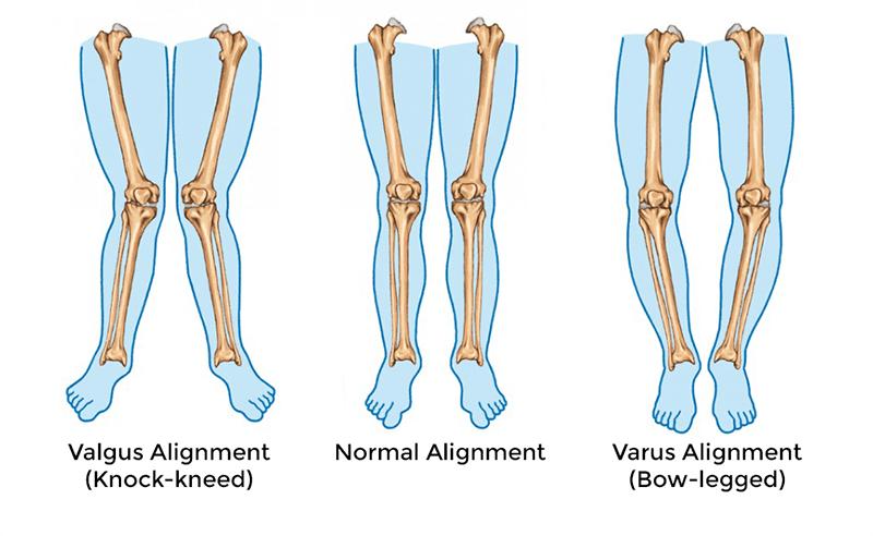 O脚・X脚と変形性膝関節症の関係