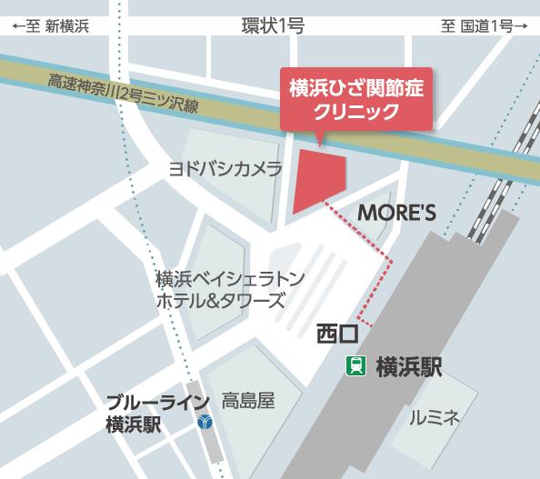 横浜ひざ関節症クリニックのアクセスマップ